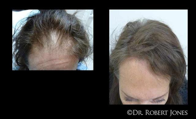 50-woman-hair-case-bna