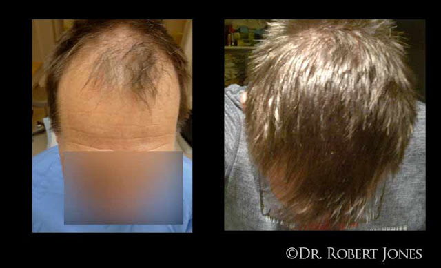 fue-case-blonde-crown-and-cap