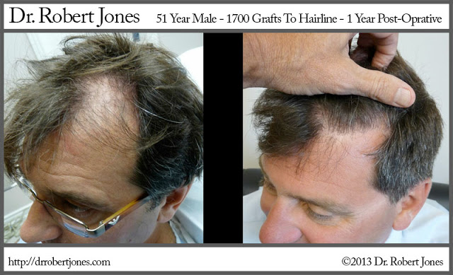 1700-grafts-51-year-male-strip-1-year-post-op