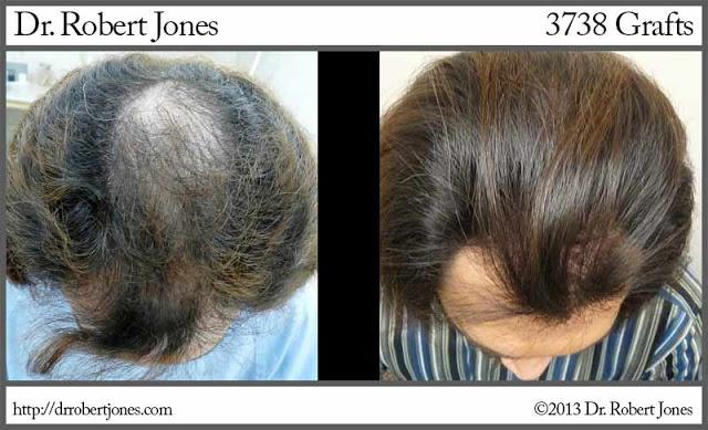 2012-3-22-3738-grafts-dr-robert-jones