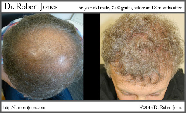 2013-4-19-56-year-male-3200-grafts-8-months-post-op