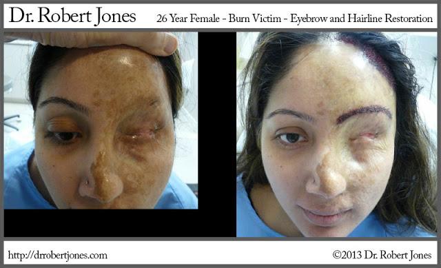 26-year-old-burn-victim-eyebrow-and-hairline-restoration