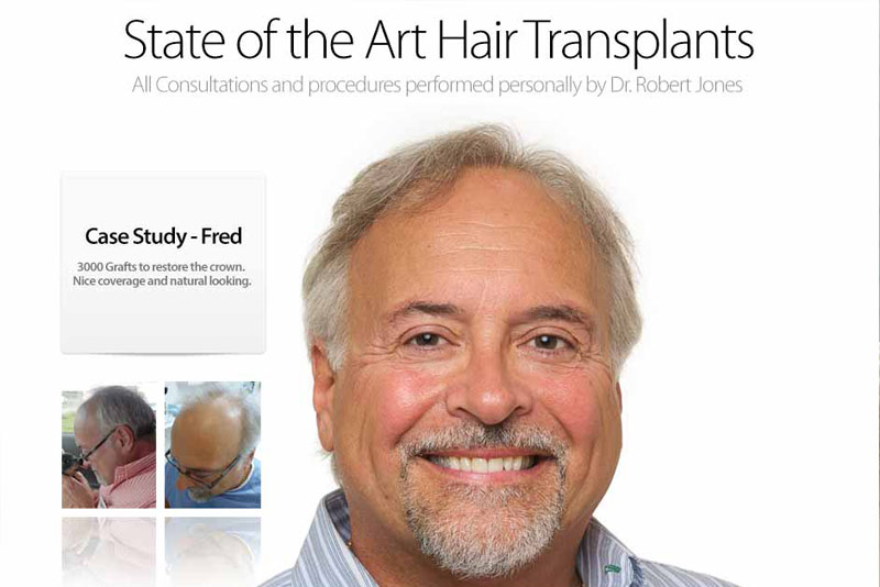 Patient Infographic – Complete Patient Timeline – Hair Transplant Start to Finish