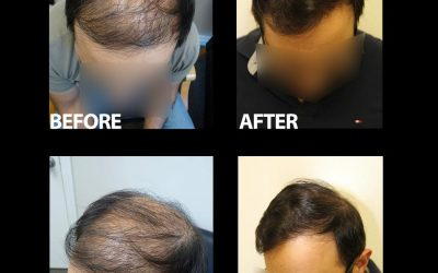 3500 Grafts – Another Great Result From The Team At DrRobertJones.com