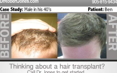 NEW CASE: 6000 FUE Grafts – Two Sessions – 7 Months Post OP