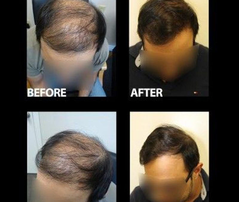 Dr.Jones' FUE – Five Great Recent Cases