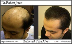 Types of baldness, hair loss pattern, getting your hair loss