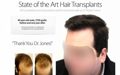Hair Transplant Case Study – 40 Year Old Male – 3700 Grafts – 1 Year Post Operative