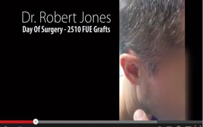 Day Of Surgery – Video Case Study – 2510 Grafts FUE