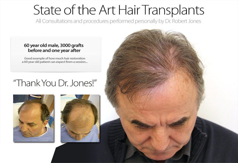 New Case Study – Hair Transplant On 60 Year Old Male