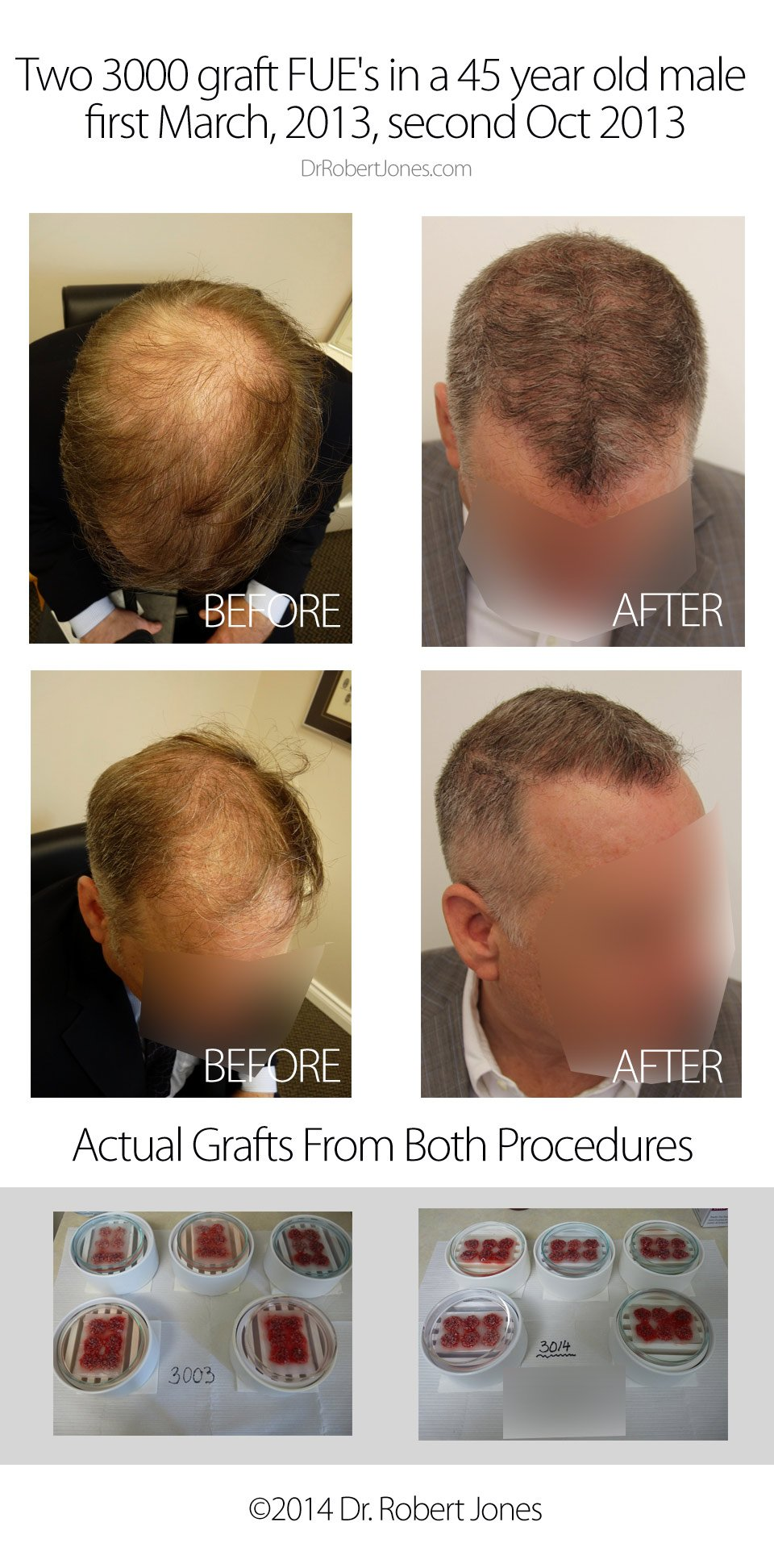 2014-3-31-2-3000-fue-grafts-6-mo-post-op-45-YO-mal-img-1
