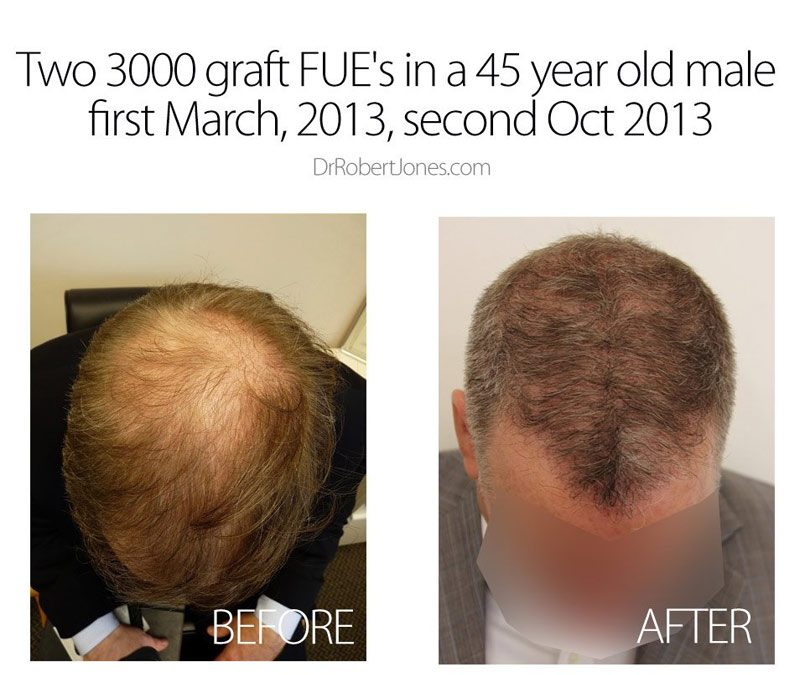Two 3000 graft FUE in a 45 year old male