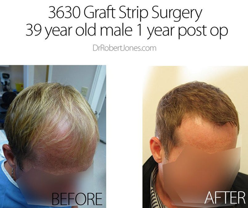 3630 Graft Strip Surgery – 39 Year Old Male – 1 Year Post Op