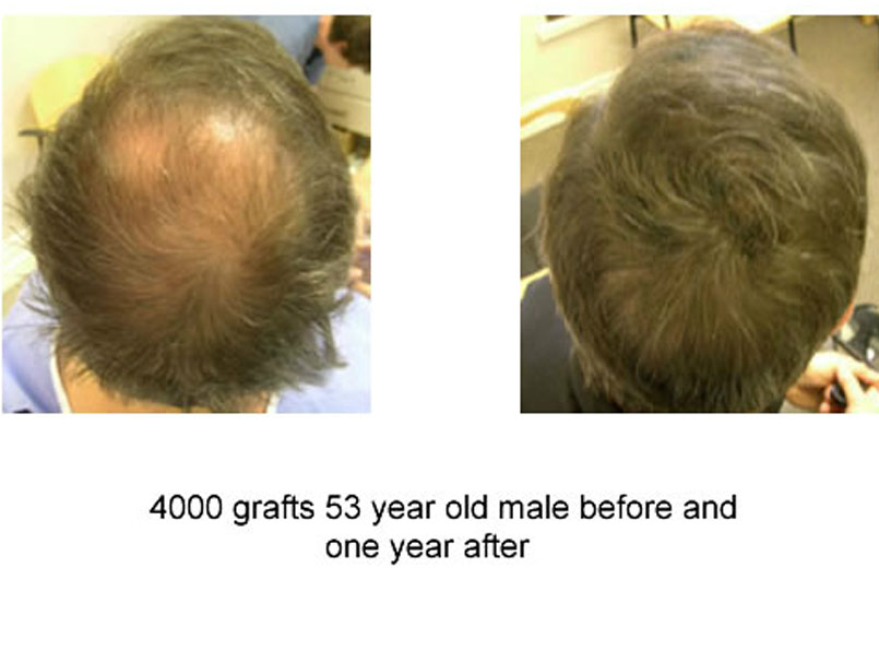 Very impressive 4000 grafts procedures performed by Dr.Jones!