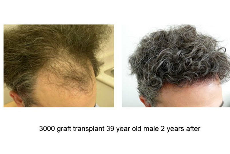 Amazing results from 3000 graft procedures performed by Dr.Jones!