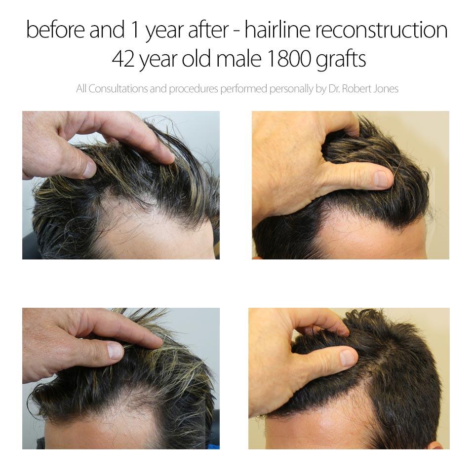 2014-5-9-dr-jones-1800-graft-hairline-reconstruction