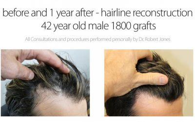 1800 Graft Hairline Reconstruction