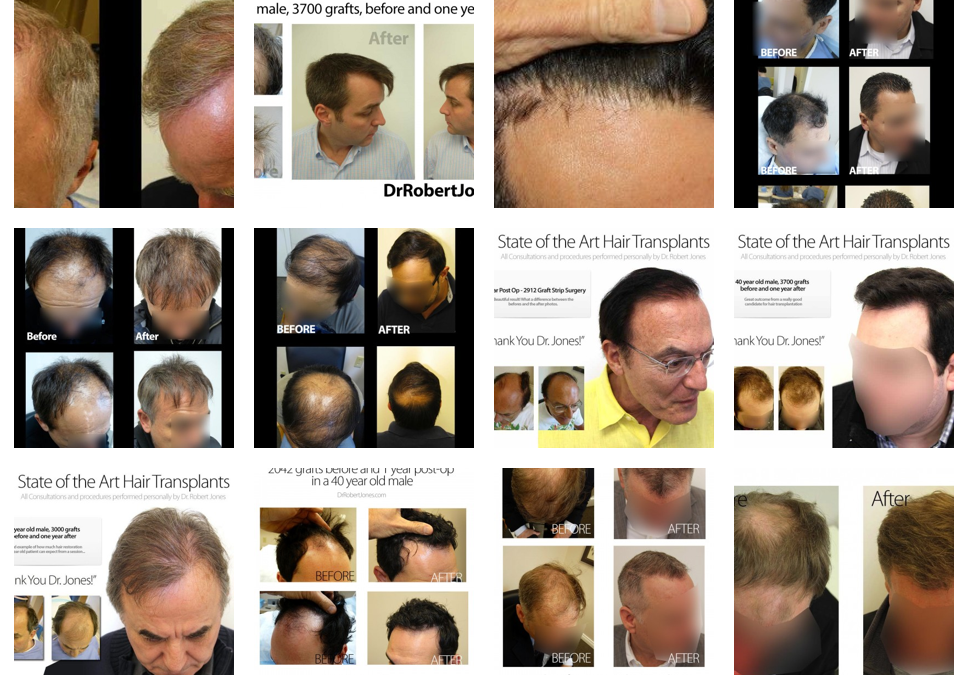 2014 Before And After Gallery Update – Sort By Age, # of Grafts and More –
