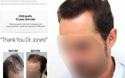 2500 grafts – 43 Year Old Male – Video Case Study