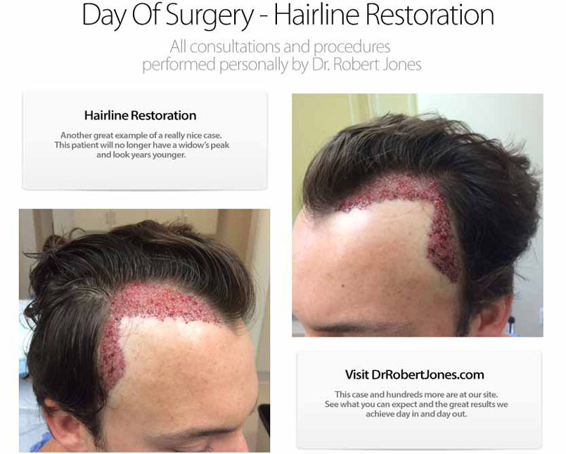 Hairline Restoration