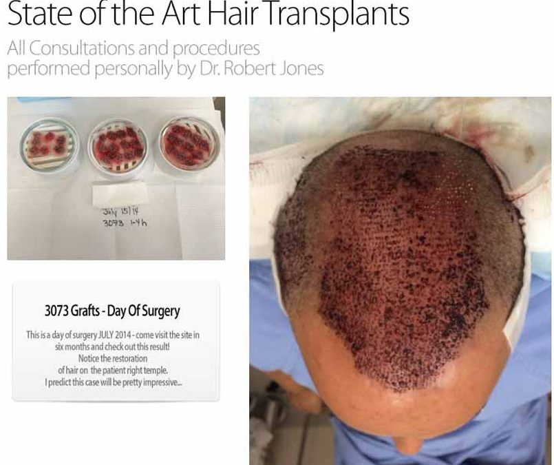 Day Of Surgery – 3000 Graft FUE Case