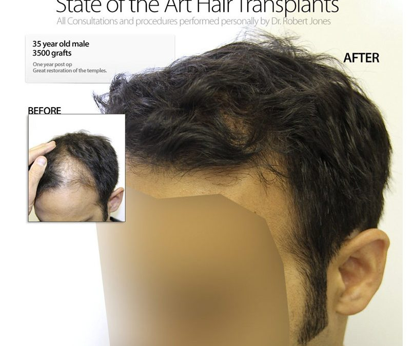 VIDEO – 3500 Graft Hair Transplant – 35 Year Old Male – 6 Months Post Op
