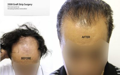 3500 Graft Strip Surgery – Hairline Restoration