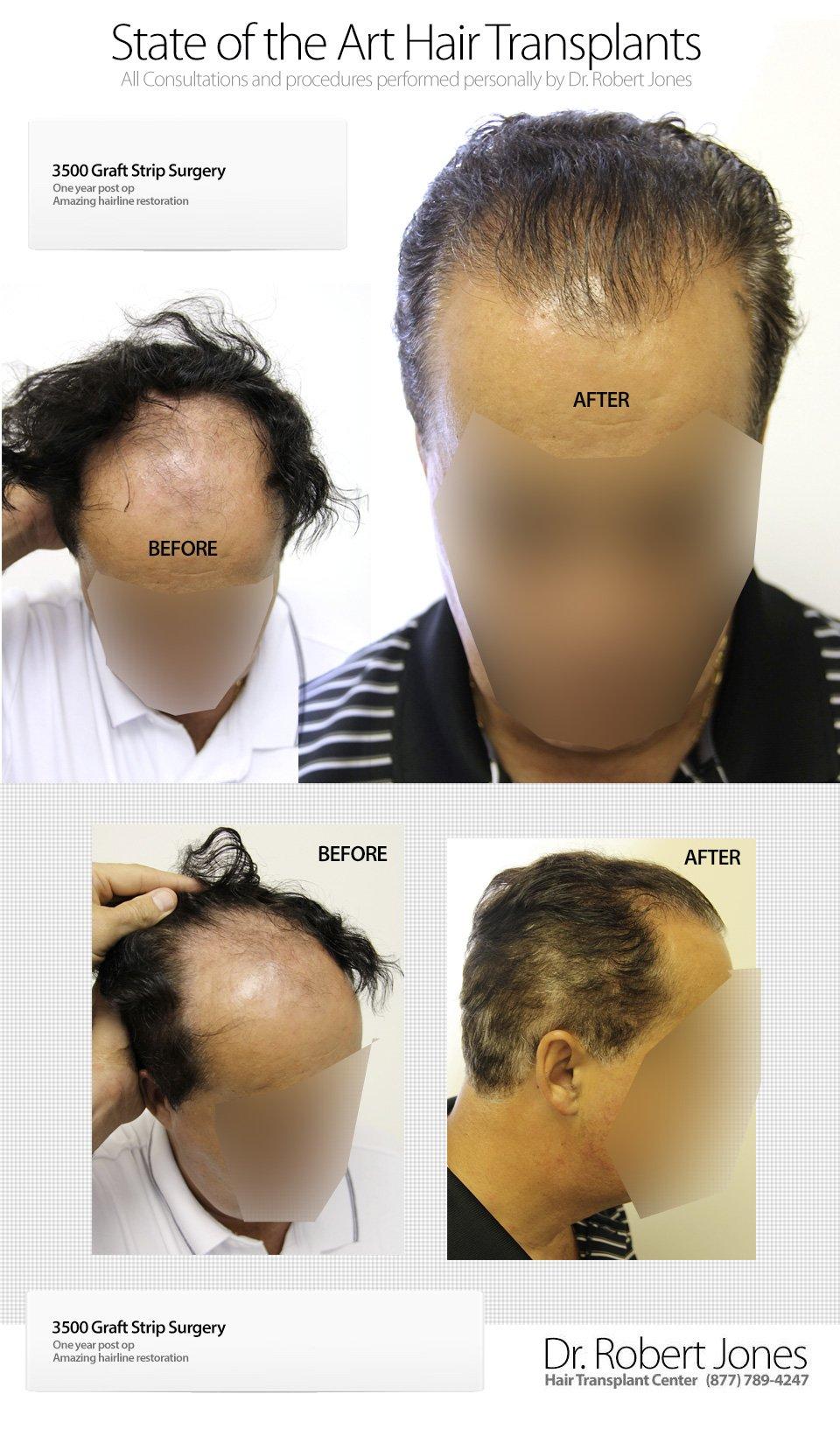 2014-9-6-3500-graft-strip-hairline-restoration-img-1