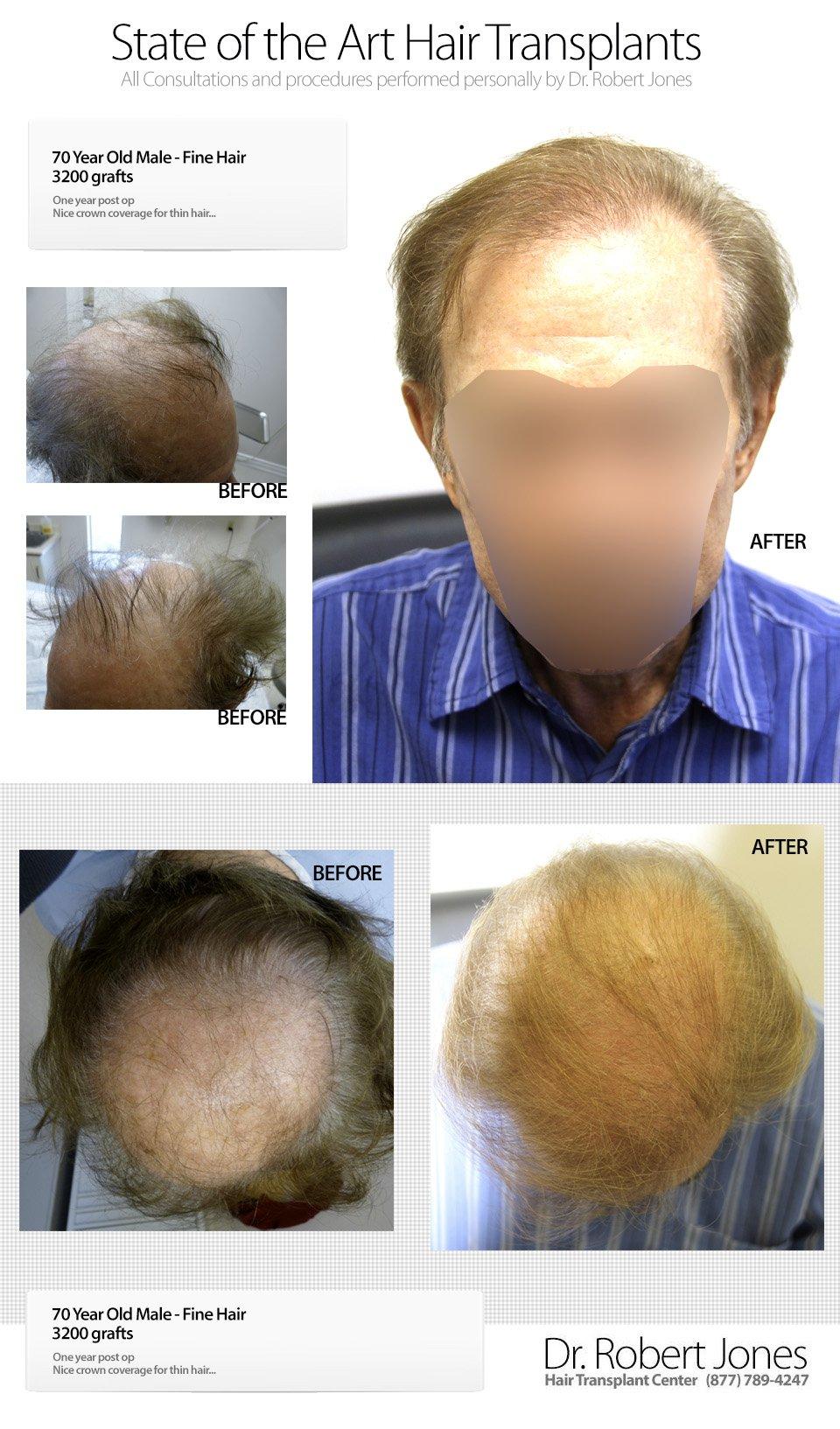 2014-9-6-70-yo-male-3200-grafts-fine-hair-img-1