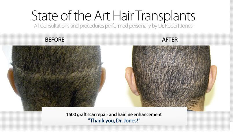 1500 Grafts To Repair Old Hair Transplant Scar and Rebuild Hairline