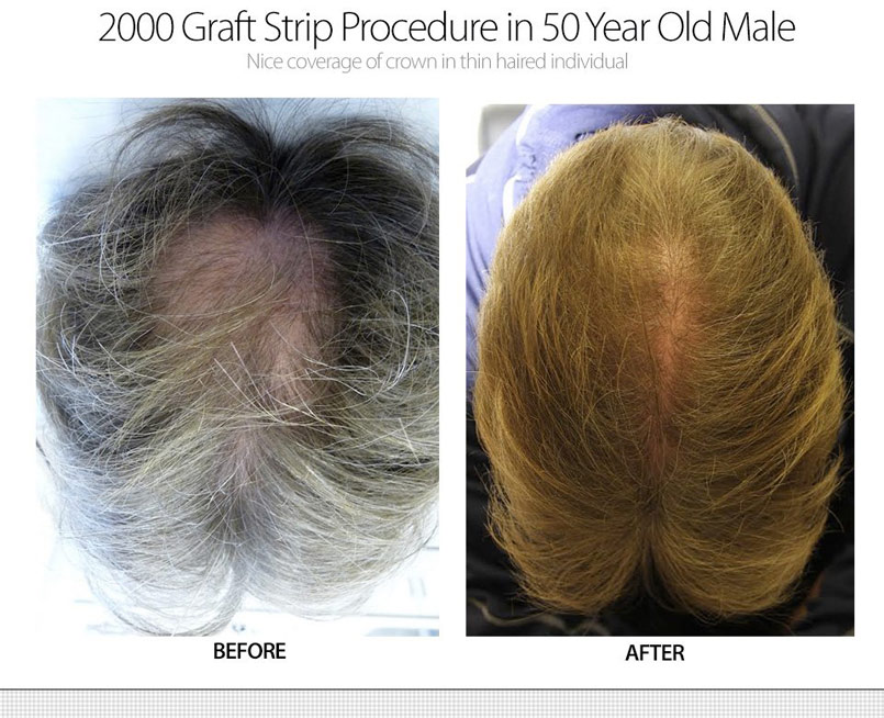 2000 Graft Strip Surgery – 50 Year Old Male – Crown Restoration