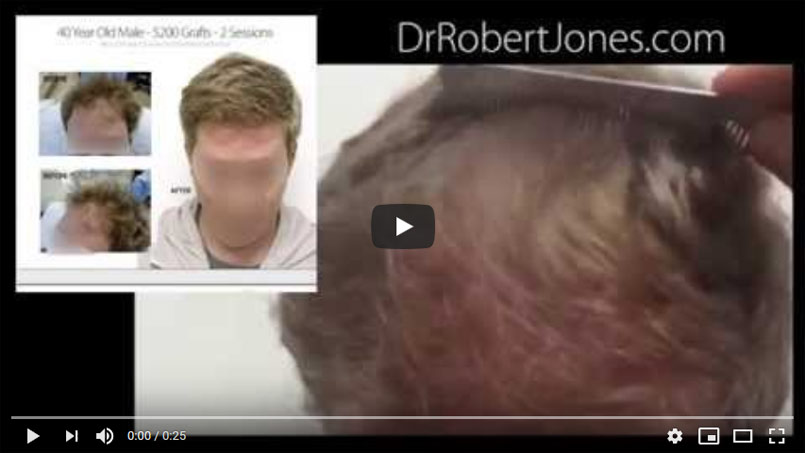 VIDEO CASE STUDY – 5200 Graft Hair Transplant – 40 Year Old Male – 2 Sessions