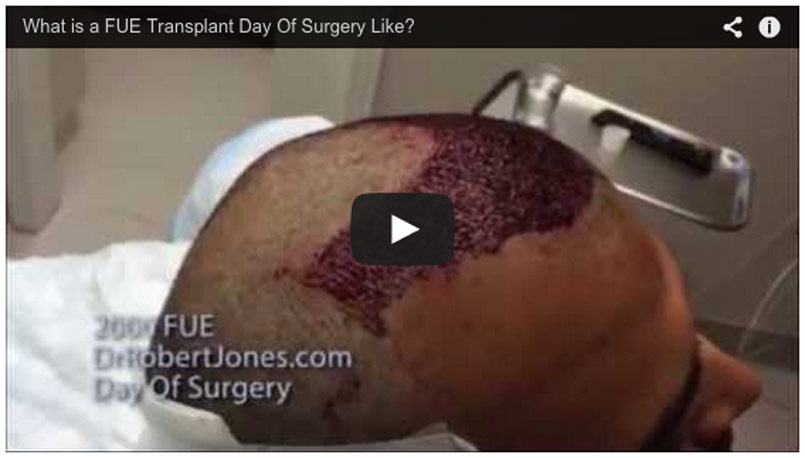 Day Of Surgery – 2000 Graft FUE Hair Transplant – Video Case Study