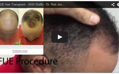 3000 Graft FUE – Video Case Study