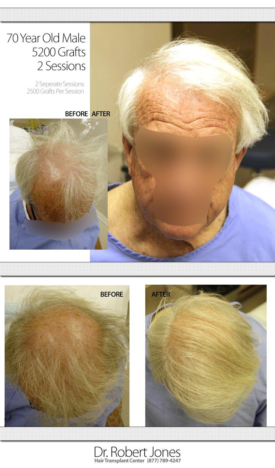 2014-10-22-tallslide-multi-70-yo-male-5000-grafts-mg-1