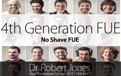 4th Generation No Shave FUE – Tell Your Story – 25% Discount for 3 Patients