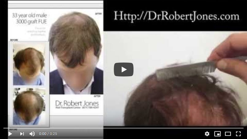 33 Year Old Male – 3000 Graft FUE – Restoration of temples/crown/forelock