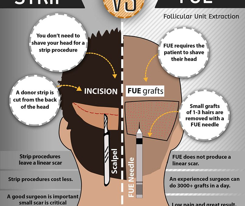 Patient Infographic: Hair Restoration Timeline – JAMES