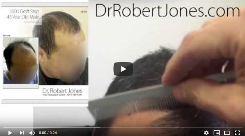 VIDEO CASE STUDY – 3500 Graft Strip Hair Transplant – Toronto CA