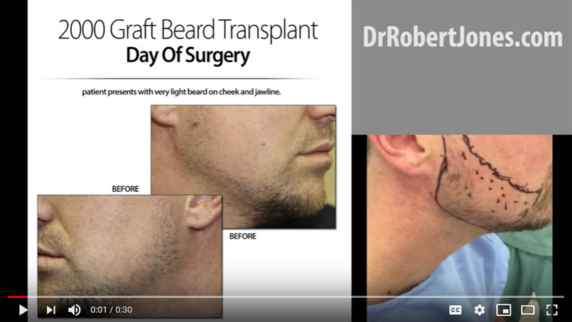VIDEO – 2000 Graft Beard Transplant – Day Of Surgery