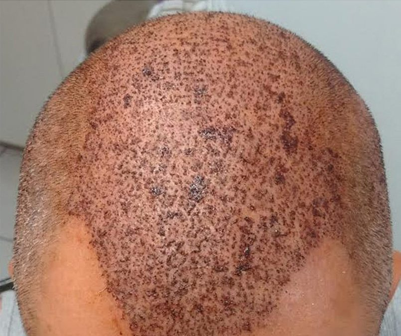 3000 Graft FUE – DAY 2 – CASE STUDY