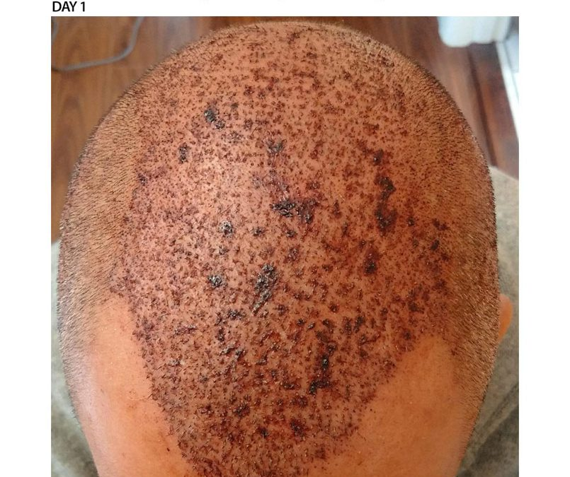 3000 Graft FUE – DAY 1 – CASE STUDY