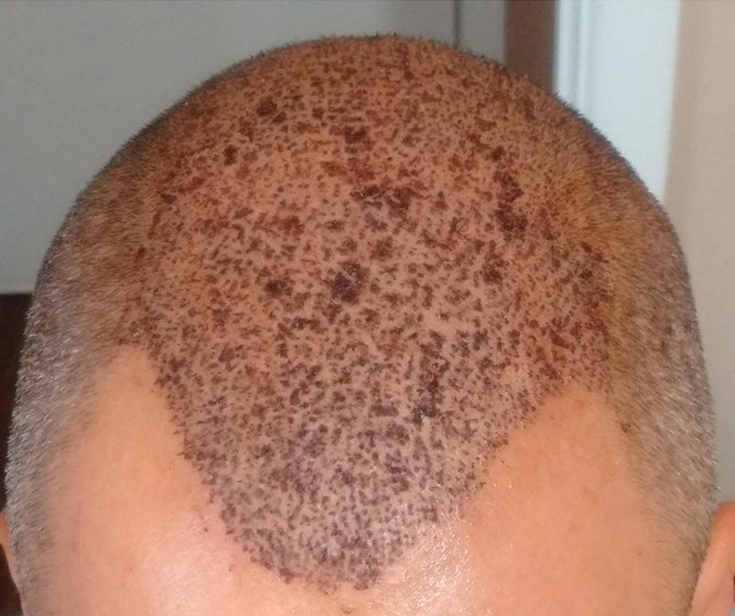 3000 Graft FUE – DAY 3 – CASE STUDY