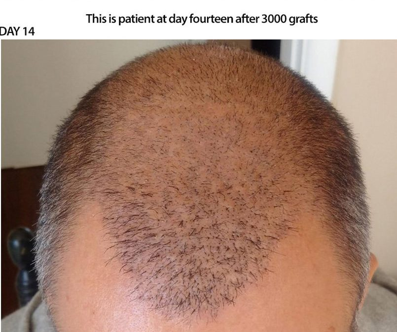 3000 Graft FUE – DAY 14 – CASE STUDY