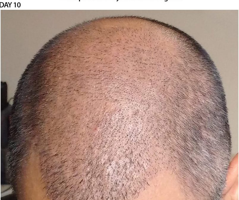 3000 Graft FUE – DAY 10 – CASE STUDY