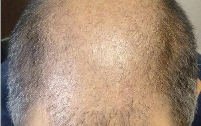 CASE STUDY – Day 21 – FUE and Scar Repair