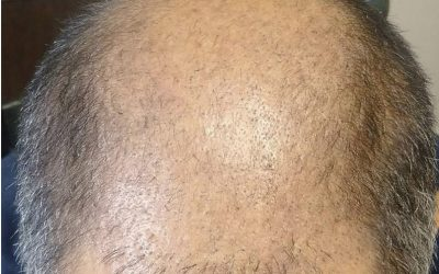 CASE STUDY – 3000 Graft FUE – DAY 28