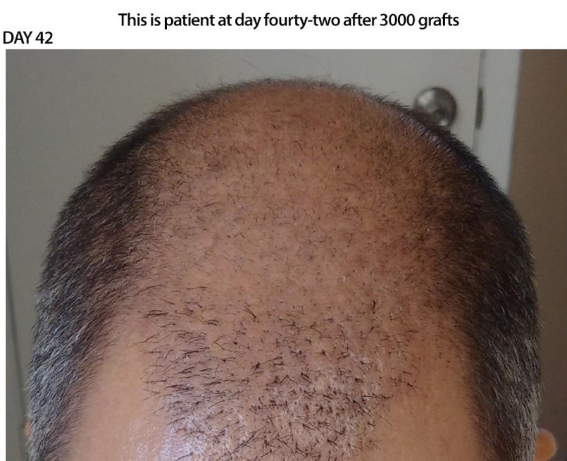 CASE STUDY – 3000 Graft FUE – Recovery Day 42