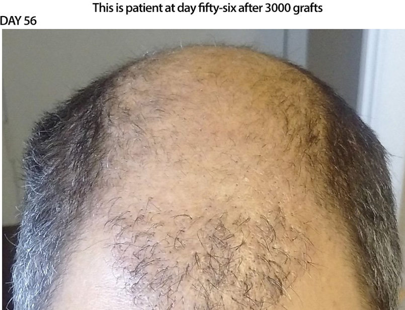 CASE STUDY – 3000 Graft FUE – DAY 56