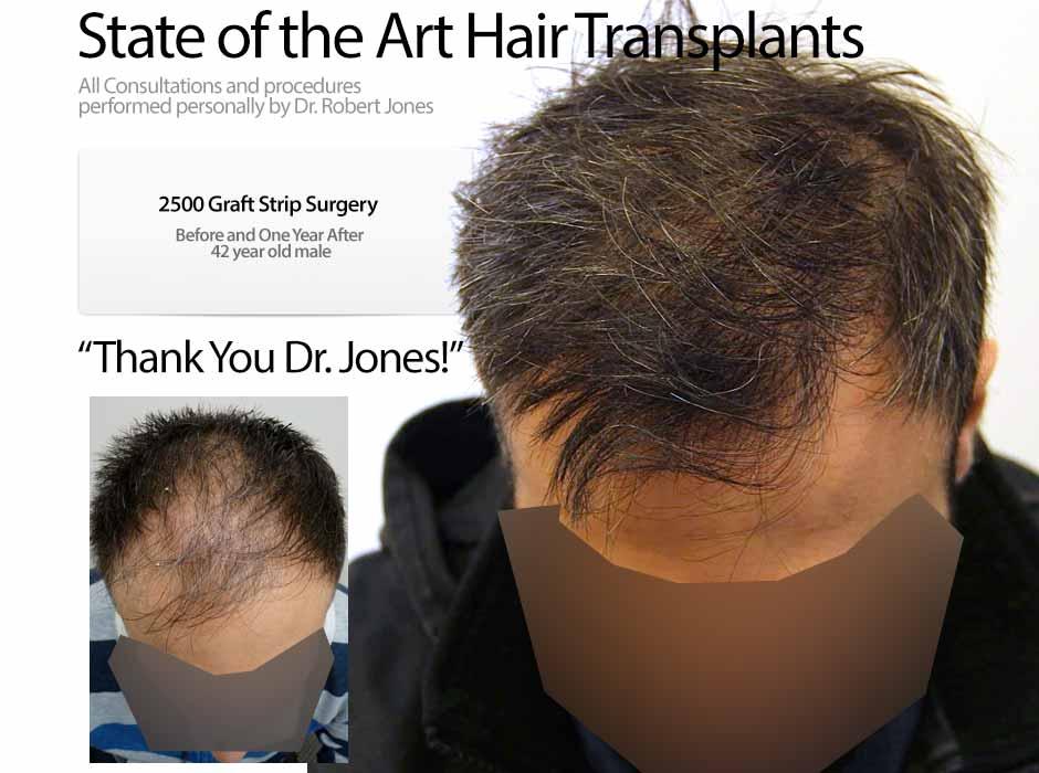2015-10-20-2500-graft-strip-surgery-42-yo-male